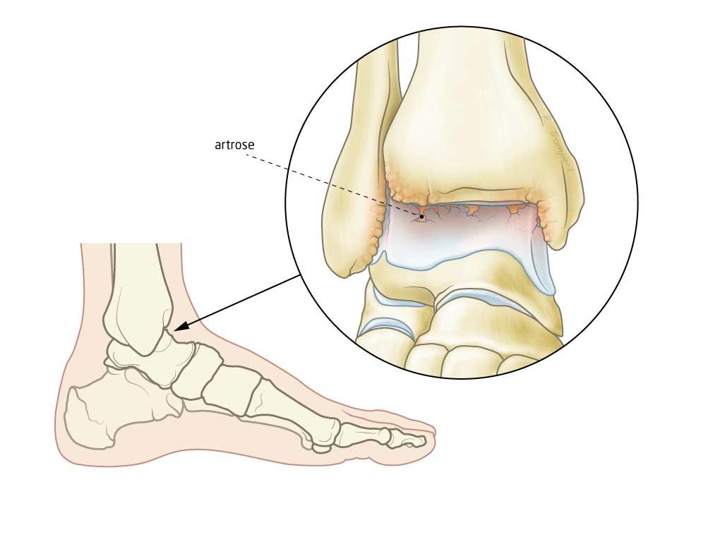 Artrose voet