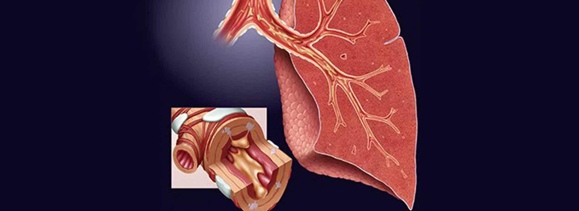 Bronchitis COPD