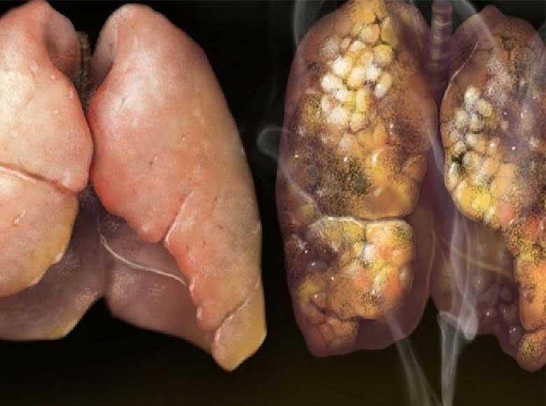 COPD roken