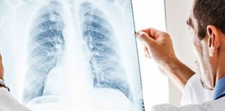 Longonsteking longen