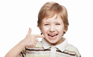 Stamcellen opslaan uit tanden